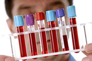Анализы, онкомаркеры