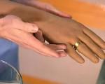 Рак костей руки