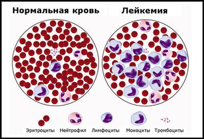 Процесс созревания лейкоцитов
