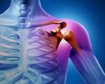 Первичный рак кости
