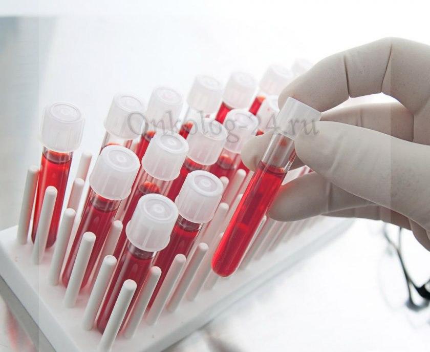 Analizy krovi pri rake krovi