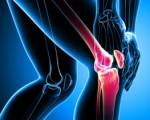 Рак костей: причины, симптомы, прогноз, профилактика фото и видео
