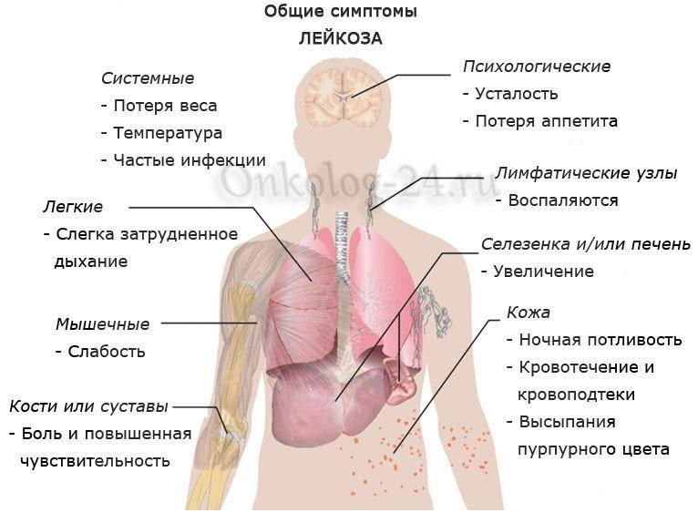Симптомы и проявления рака крови