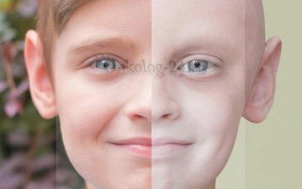 Рак крови у детей и подростков
