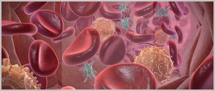 Рак крови