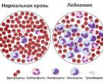 1, 2, 3, 4 стадия рака крови (лейкоза, лейкемии), особенности развития болезни
