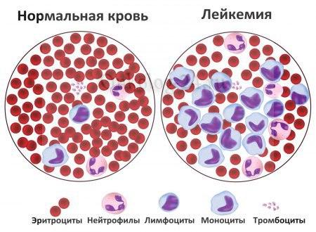 Стадии развития рака крови