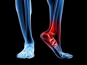 Рак кости ноги
