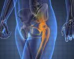 Рак костей таза, бедра и тазобедренного сустава