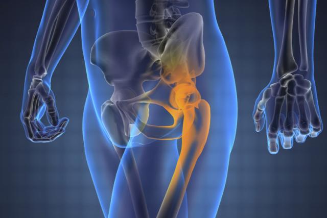 Дистрофия тазобедренного сустава у взрослых и лечение