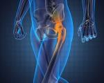 Остеогенная саркома или рак костей таза, бедра и тазобедренного сустава
