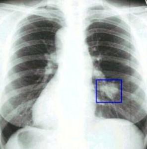 Флюорография при раке легких