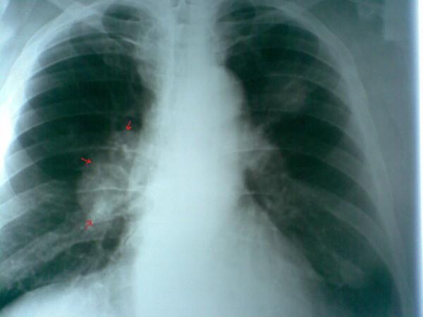 Как узнать что у тебя рак легких?
