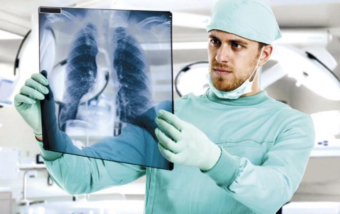 Профилактика рака легких, заключается в своевременном прохождении флюорографии