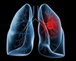 Аденокарцинома легких или железистый рак легких