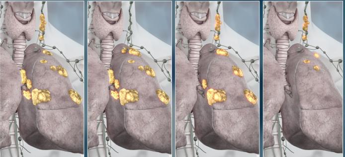 Стадии распространенности онкологии легких