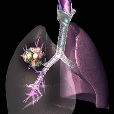 Центральный рак легких