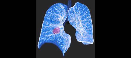 Симптомы и лечение немелкоклеточного рака легких