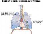 Центральный рак легкого