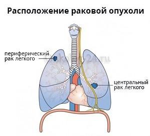 Расположение центрального и периферического рака легких