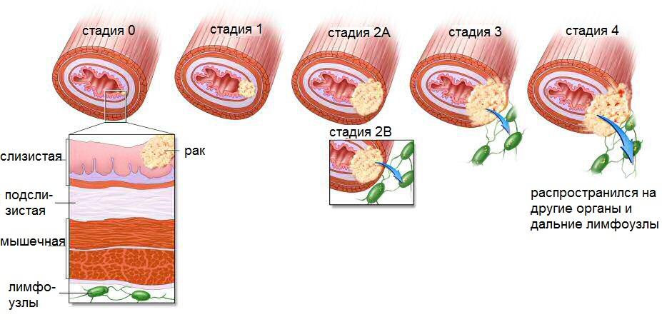 Степени распространенности рака легких