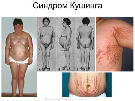 Заболевания печени кисты