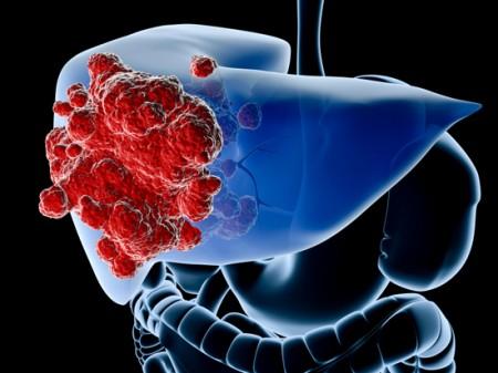 Рак печени 3 стадии