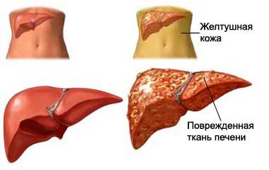 Через сколько сдать кровь на гепатит