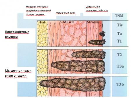 Первая степень рака мочевого пузыря