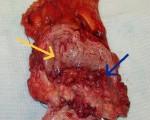 Способы лечения опухоли мочевого пузыря