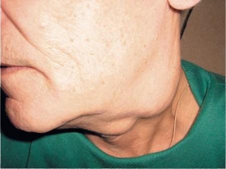 Лимфоузлы при раке щитовидной железы