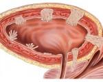 Метастазы при раке мочевого пузыря