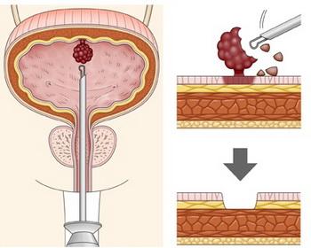 Методика лечения опухолей