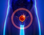 Рак мочевого пузыря у мужчин