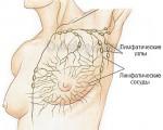 Злокачественная опухоль лимфоузлов под мышками
