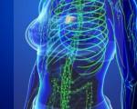 1, 2, 3, 4 стадия лимфомы, как развивается, симптомы, лечение и прогноз жизни при лимфоме