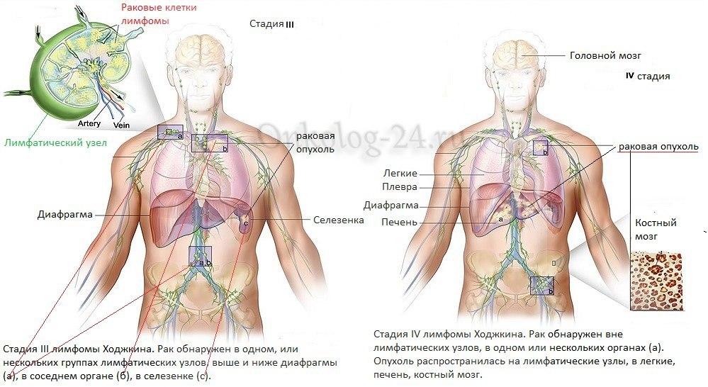 lecheniye limfomy