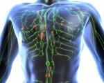 Как и чем лечить лимфому Ходжкина и неходжкинские лимфомы, самые эффективные методы лечения лимфомы