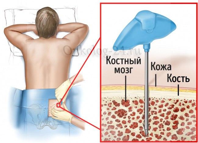 peresadka kostnogo mozga pri rake limfouzlov