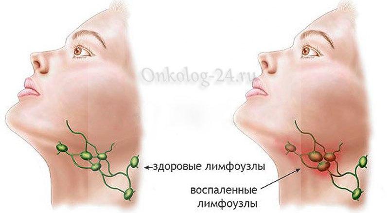 rak limfouzlov pod chelyustyu