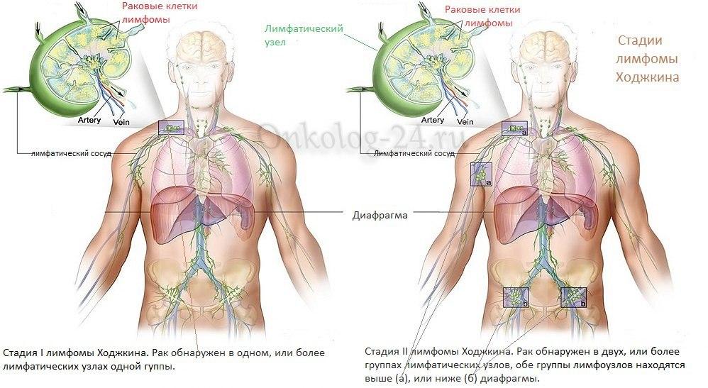 stadii limfomy