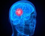 Неоперабельная опухоль головного мозга