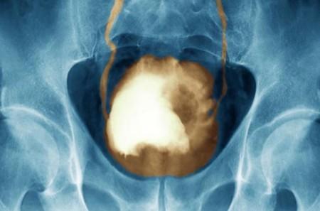 Способы диагностики рака