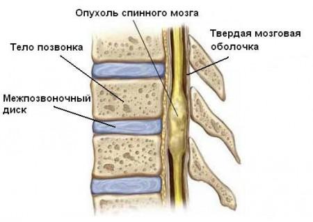 Рак спинного мозга: причины