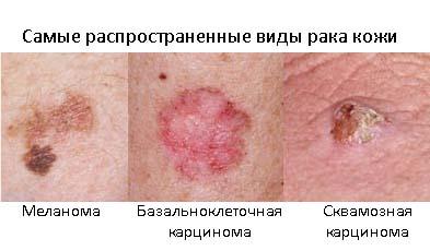Виды рака
