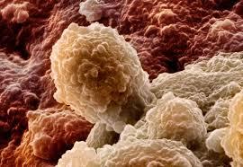 Инвазивный рак мочевого пузыря