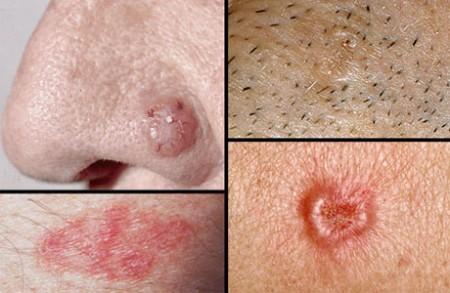Виды онкологии кожи лица