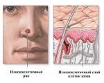 Рак кожи носа