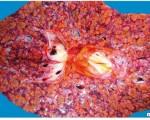 Холангиоцеллюлярный рак печени