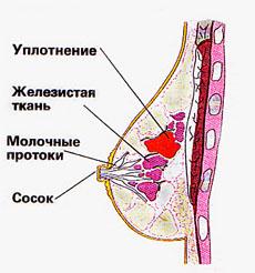 Симптоматические проявления